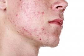 Da nhờn mụn nên sử dụng sữa rửa mặt gì là xịn nhất cho da